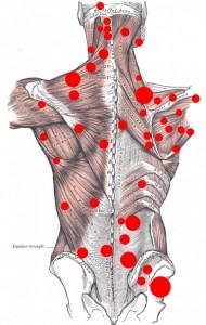 muskler i skulderen